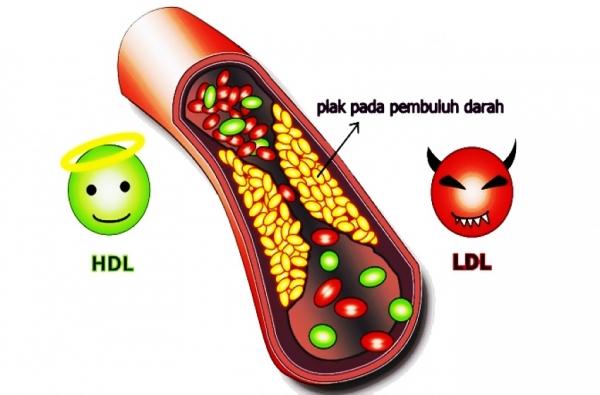 Kolesterol Saya Normal Kembali