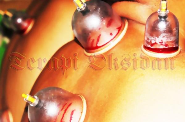 Wahyudi Widada, S.Kep, M.Ked (kiri) bersama Candra P. Pusponegoro