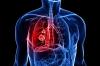 Bekam Obati Kecanduan Rokok