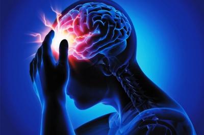 Ilustrasi sakit kepala karena migren